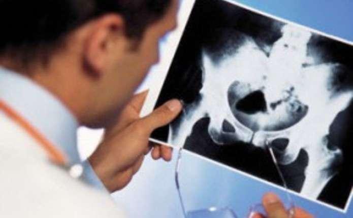На базі Кіцманської ЦРЛ здійснили вживлення штучного суглоба