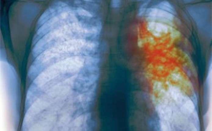 У Чернівцях з початку року знизився рівень захворюваності на туберкульоз