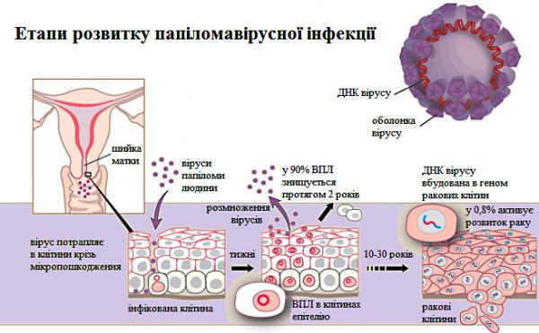 Папіломавірус вражає тільки людей