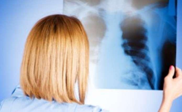 У Сокирянах від пневмонії померло подружжя