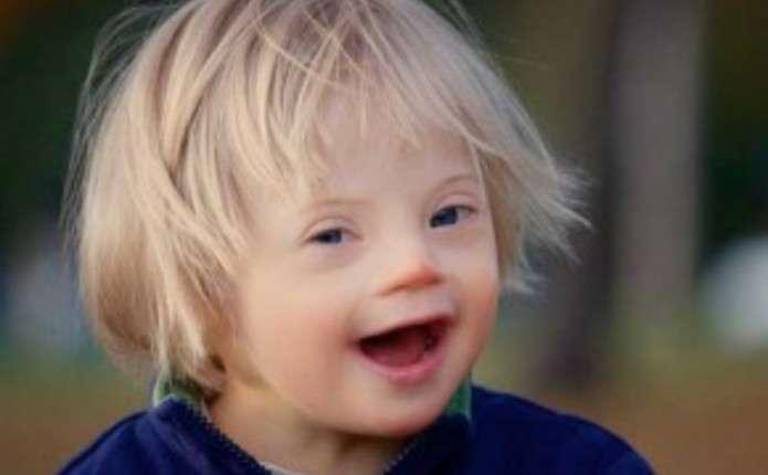 Сьогодні у світі відзначають Міжнародний день людей із синдромом Дауна