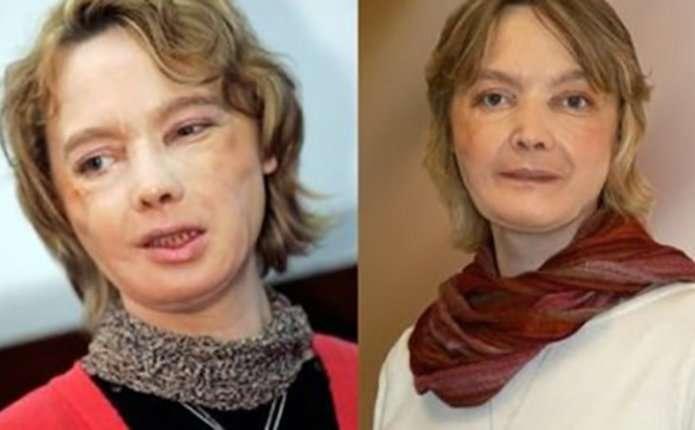 Померла жінка, якій першій в світі пересадили обличчя