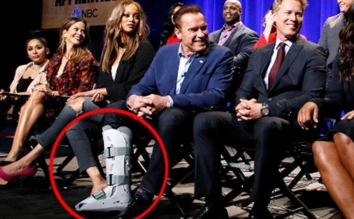 Арнольд Шварценеггер зламав ногу під час педикюру