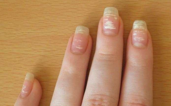 Про що попереджають білі плями на нігтях
