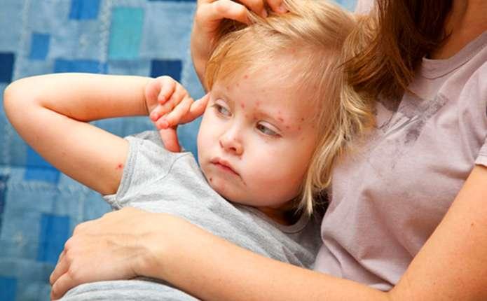 У Чернівецькій області 50% дітей не щеплені проти кору