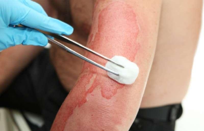 Народні методи лікування можуть бути небезпечними для здоров'я