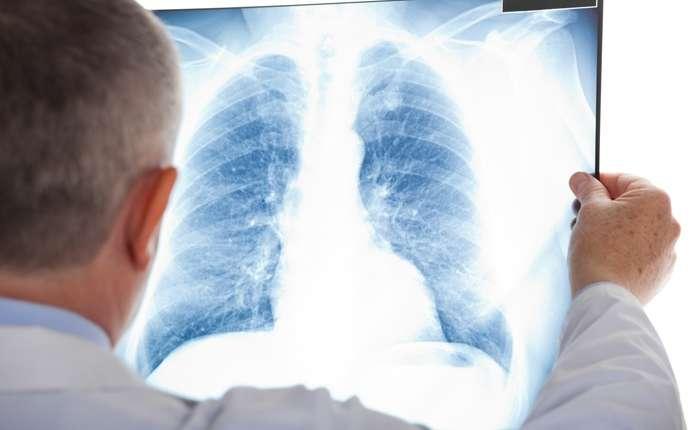 На Буковині знизився рівень захворюваності на туберкульоз