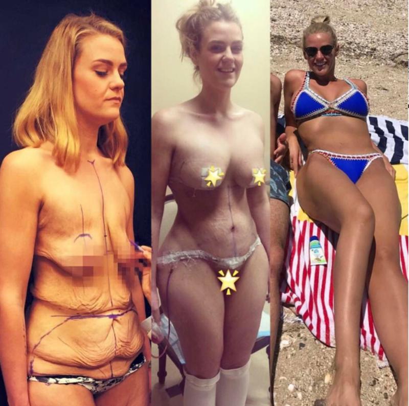 Жінка втратила 92 кілограми за один рік