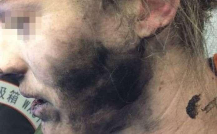 На борту літака у жінки вибухнули навушники від мобільного телефону