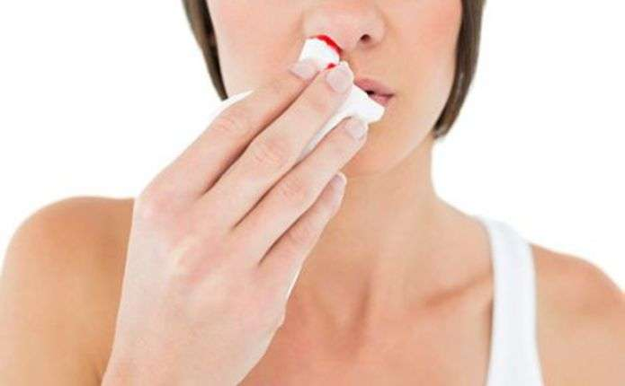 Що робити, якщо часто іде кров із носа