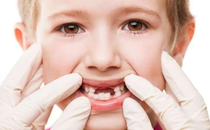 5 міфів про догляд за зубами, які варто забути